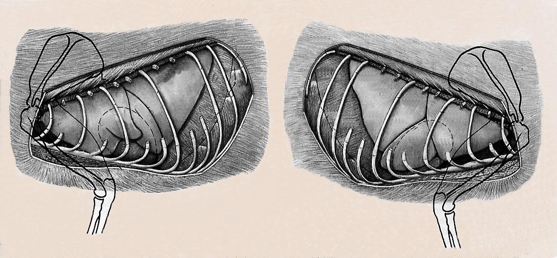 magen anatomie lage